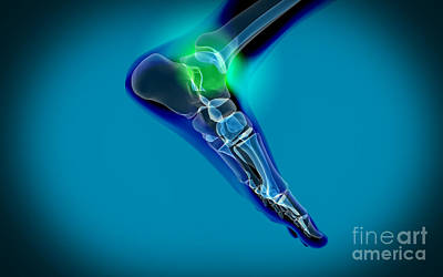 Human Joint Digital Art - X-ray View Of Pain In Human Foot by Stocktrek Images
