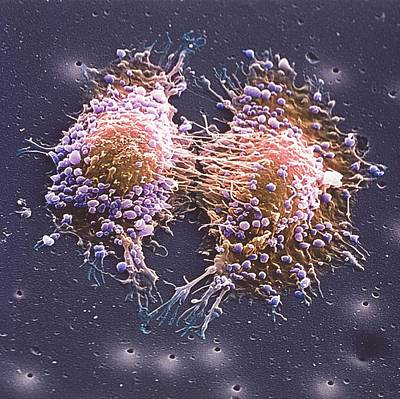 Cell Division Photograph - Cancer Cell Division by Steve Gschmeissner