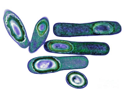 Photograph - Clostridium Difficile Bacteria, Tem by Biomedical Imaging Unit, Southampton General Hospital
