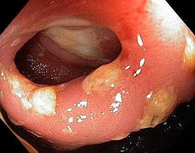 Terminal Photograph - Crohn's Disease by Gastrolab