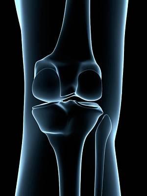 Human Joint Photograph - Human Knee Joint by Sebastian Kaulitzki