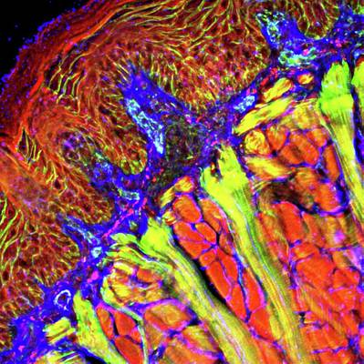 Tongue Tissue Art Print by R. Bick, B. Poindexter, Ut Medical School