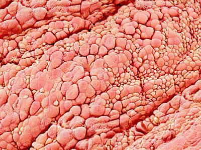 Trachea Lining, Sem Art Print by Science Photo Library