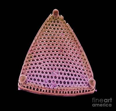 Diatom Alga, Sem Art Print by Steve Gschmeissner
