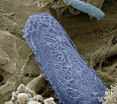 Photograph - Ciliate Protozoan Sem by Steve Gschmeissner
