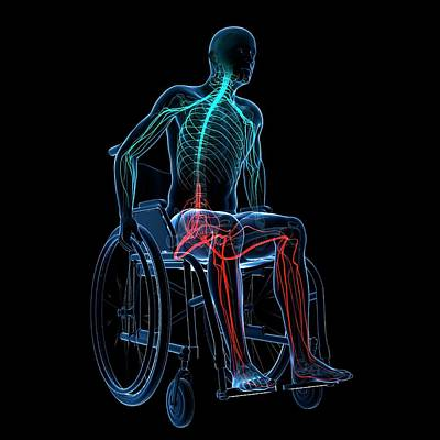 Man In A Wheelchair Art Print by Sciepro/science Photo Library
