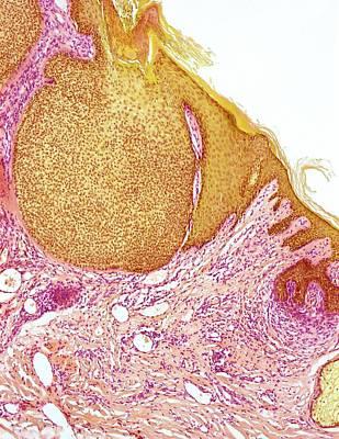 Basal Photograph - Skin Cancer by Steve Gschmeissner