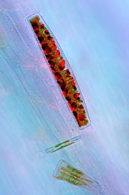 Unicellular Photograph - Diatoms by Marek Mis