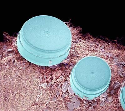 Diatoms Photograph - Diatoms, Sem by Susumu Nishinaga