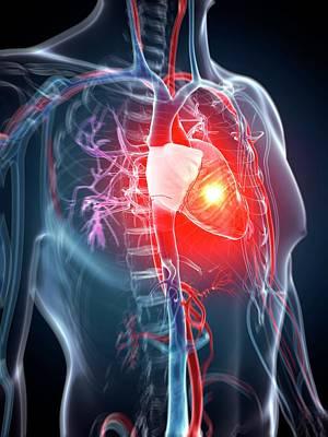 Arrest Photograph - Human Heart Attack by Sebastian Kaulitzki