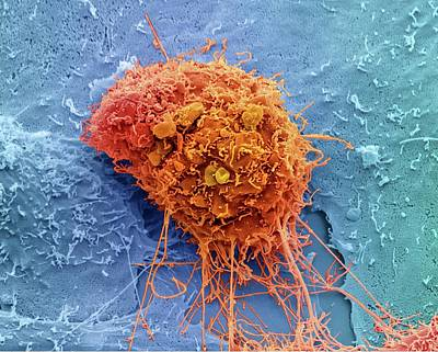 Cervical Cancer Cell Art Print by Steve Gschmeissner