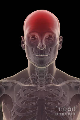 Photograph - Head Pain by Science Picture Co