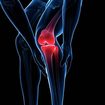 Painful Knee Art Print by Sciepro/science Photo Library