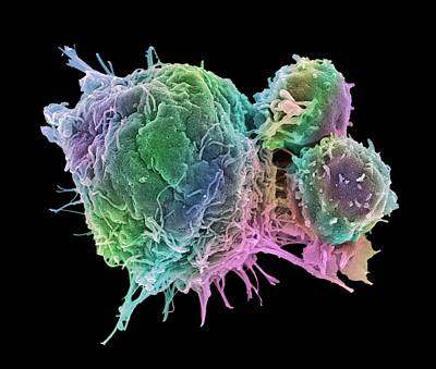 Cancer Cell And T Lymphocytes Art Print