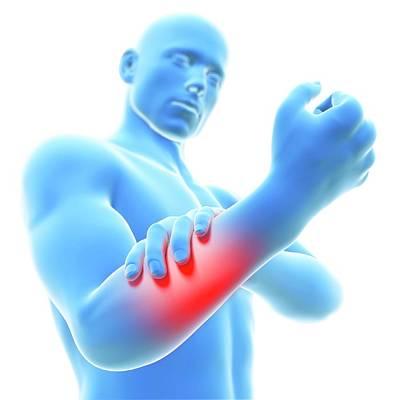 Physiology Photograph - Human Arm Pain by Sebastian Kaulitzki