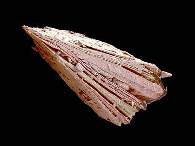 Calcium Oxalate Photograph - Kidney Stone by Susumu Nishinaga