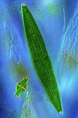 Unicellular Photograph - Desmids On Sphagnum Moss by Marek Mis