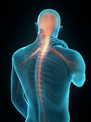 Human Neck Pain Art Print by Sebastian Kaulitzki/science Photo Library