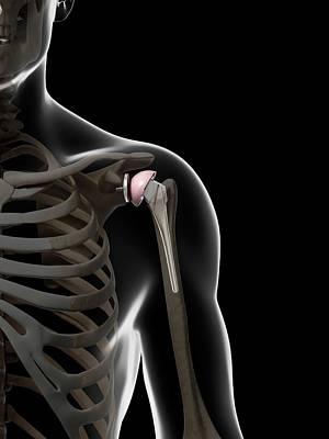 Human Shoulder Replacement Art Print by Sebastian Kaulitzki