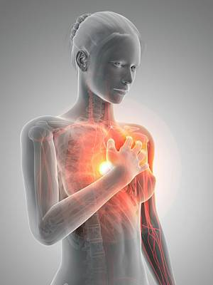 Human Heart Attack Art Print by Sebastian Kaulitzki