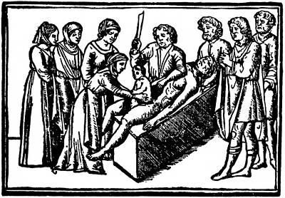 16th-century Caesarean Birth Art Print
