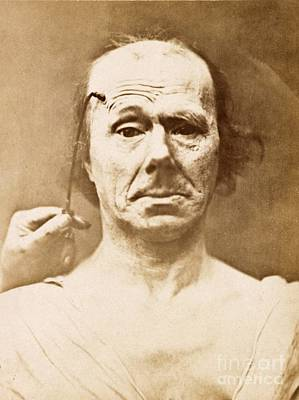 Albumen Photograph - Duchenne's Physiognomy Studies, 1860s by Miriam And Ira D. Wallach Division Of Art, Prints And Photographs
