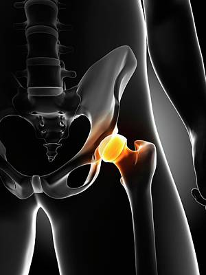 Hip Pain Art Print by Sciepro/science Photo Library