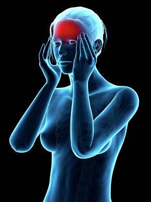 Human Headache Art Print by Sebastian Kaulitzki