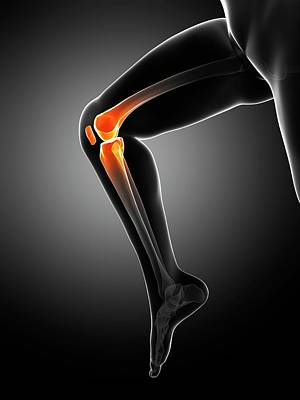 Knee Pain Art Print by Sciepro/science Photo Library