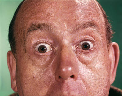 Shock Photograph - 1960s Close Up Detail Of Florid Man by Vintage Images