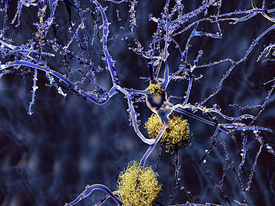 Senile Plaques Photograph - Alzheimer's Disease by Juan Gaertner