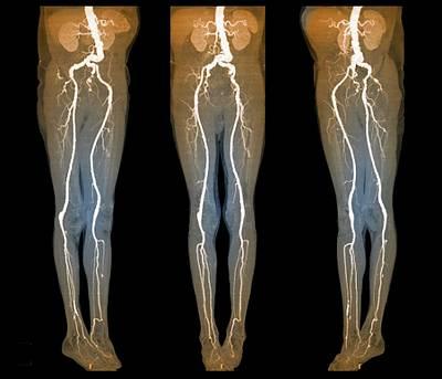 Arterial Aneurysm Art Print by Zephyr