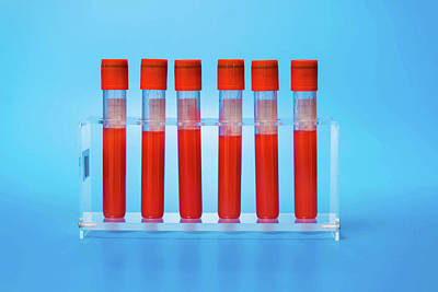 Rack Photograph - Blood Samples In Tubes by Wladimir Bulgar
