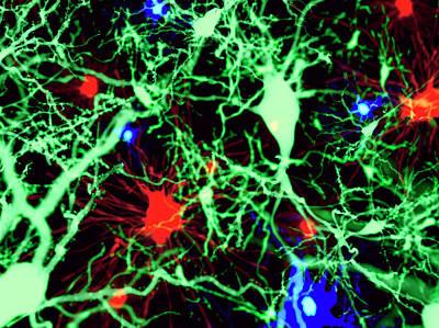 Brain Cells Art Print by Juan Gaertner