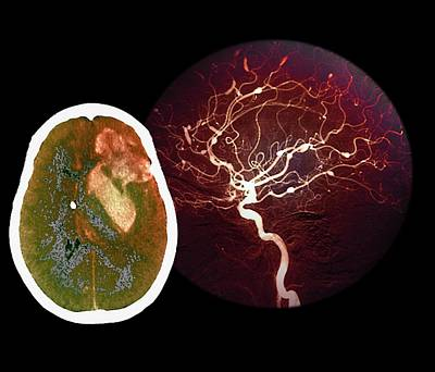 Brain Haemorrhage From Aneurysm Art Print by Zephyr/science Photo Library