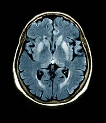 Brain In Creutzfeldt-jakob Disease Print by Zephyr