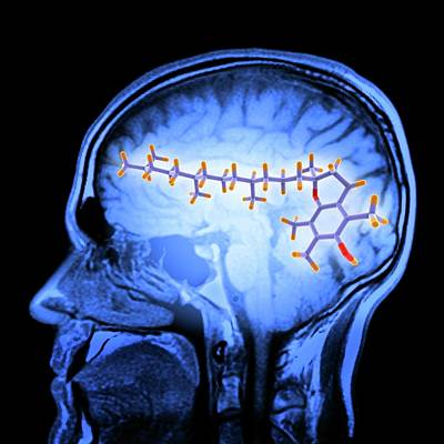 Brain Mri Scan And Vitamin E Molecule Art Print by Alfred Pasieka