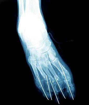 Bunion After Surgery Print by Zephyr
