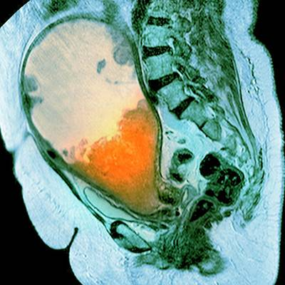 Cancer Of The Uterus Art Print by Du Cane Medical Imaging Ltd/science Photo Library