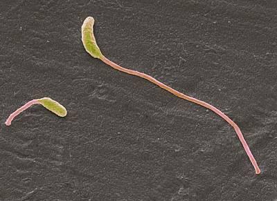 Clostridium Phytofermentans Print by Steve Gschmeissner