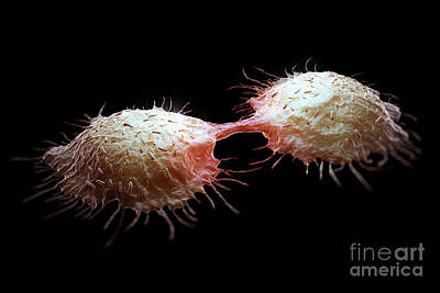 Photograph - Colon Cancer Cells by Science Picture Co