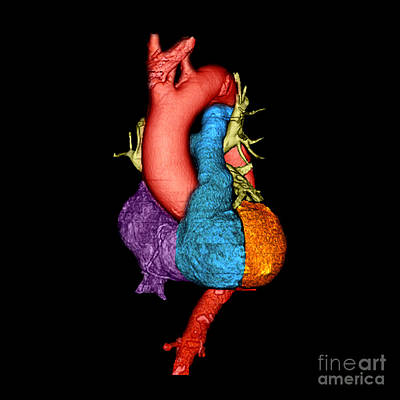 Photograph - Color Enhanced 3d Ct Of Heart by Living Art Enterprises