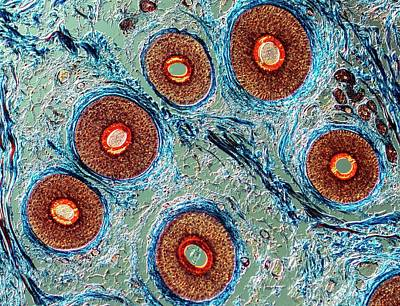 Cross-section Through Human Hairs Art Print