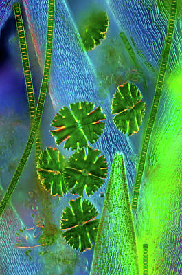 Unicellular Photograph - Desmids On Sphagnum Moss by Marek Mis