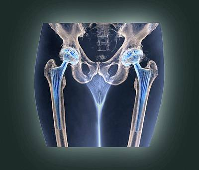 50s Photograph - Double Hip Replacement by Zephyr