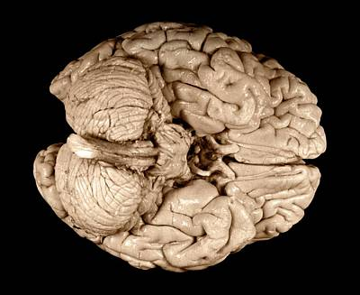 Cerebral Hemisphere Photograph - Einstein's Brain by Otis Historical Archives, National Museum Of Health And Medicine