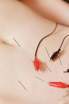 Electroacupuncture Fertility Treatment Art Print by Thomas Fredberg