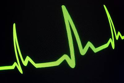 Heartbeat Trace Art Print by Daniel Sambraus