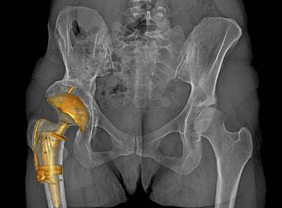 Hip Replacement Art Print by Zephyr
