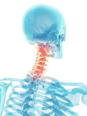 Human Head Photograph - Human Neck Bones by Sciepro